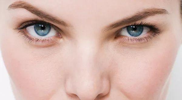 美人计 | 泪沟和眼袋还分3种类型,搞不清想年轻也不行-10.jpg